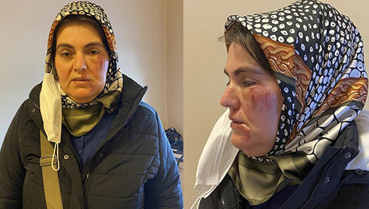<p>İstanbul Maltepe'de markette çıktıktan sonra evine doğru yürüyen Hatice Türkoğlu, tanımadığı bir