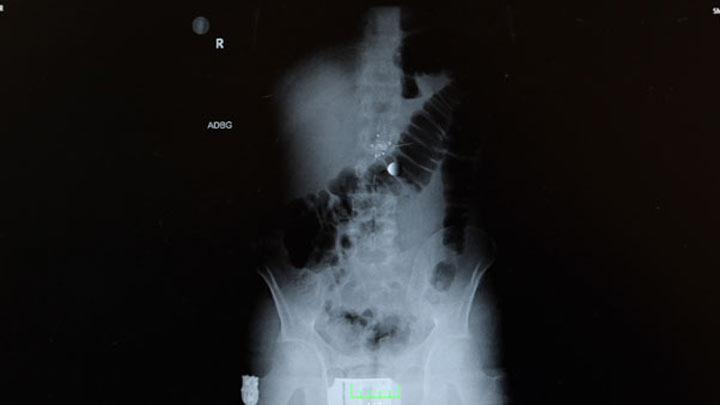Midedeki kol saati röntgende böyle çıktı