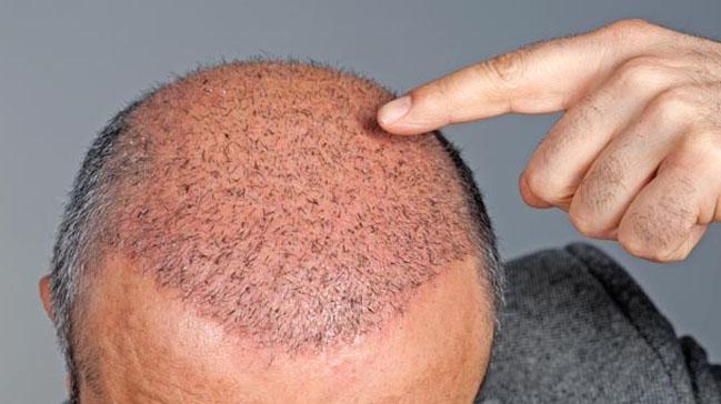 """Saç ekimi sonrası ne yapılmalı, ne tür bir bakım uygulamanız gerekebilir"""""""