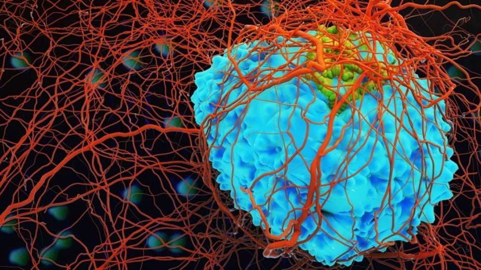 Kanser nasıl oluşur? Bilim insanları araştırma sonucunu açıkladı