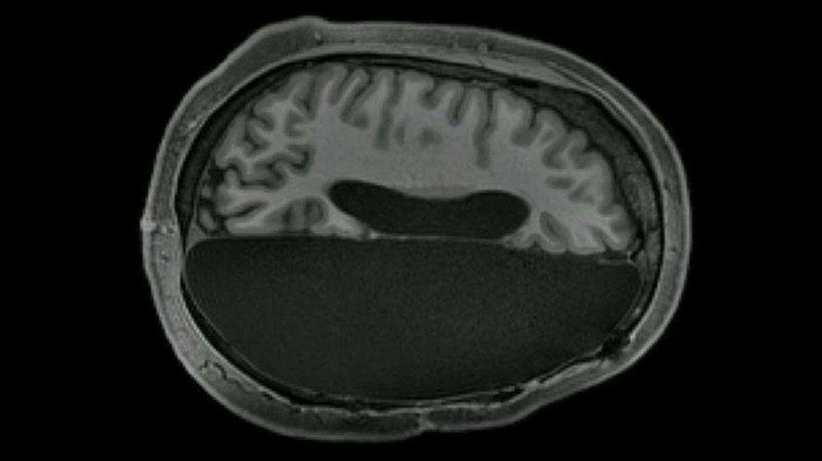 Bilim insanları açıkladı: Beynin yarısı alınan insanlar normal bir yaşam sürebilir
