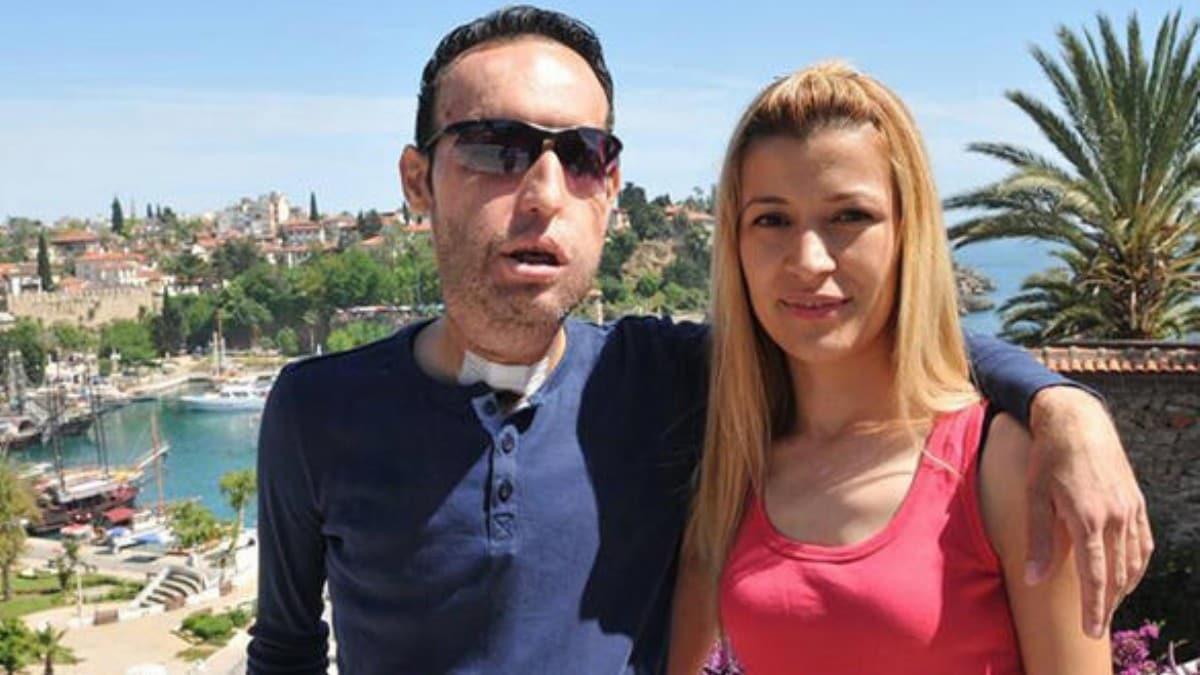 Yüz nakilli Recep Sert ile Esma Sert boşanıyor