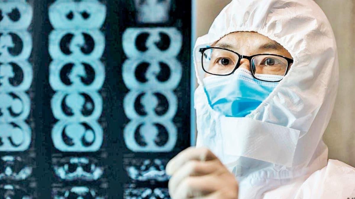 Koronavirüsten iyileşenlerin ciğerinde sıvı kesesi görüldü