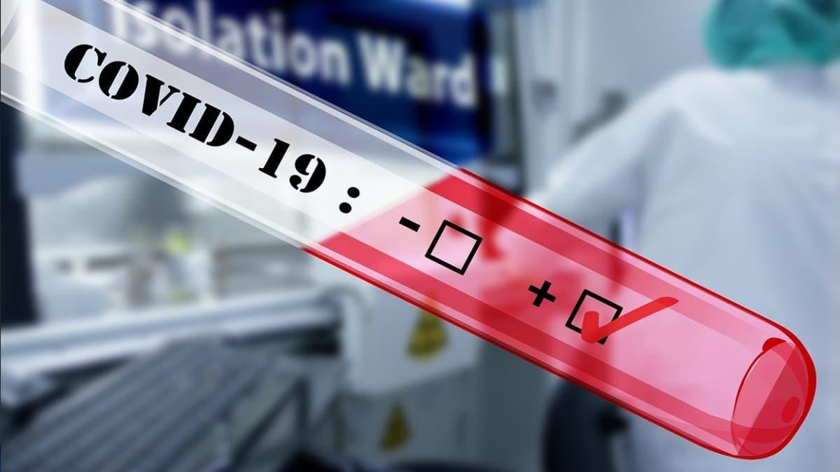 ABD 2 dakikada sonuç veren koronavirüs testine onay verdi
