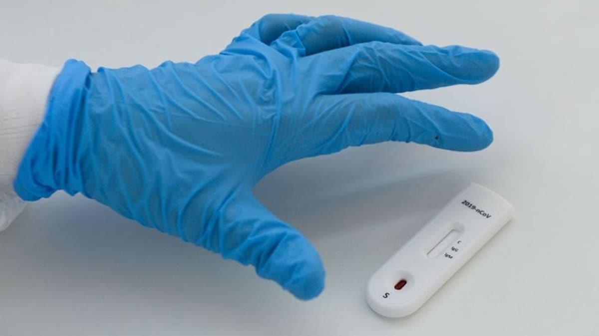 Koronavirüs vaka sayısı dünya genelinde 2 milyon 800 bini aştı