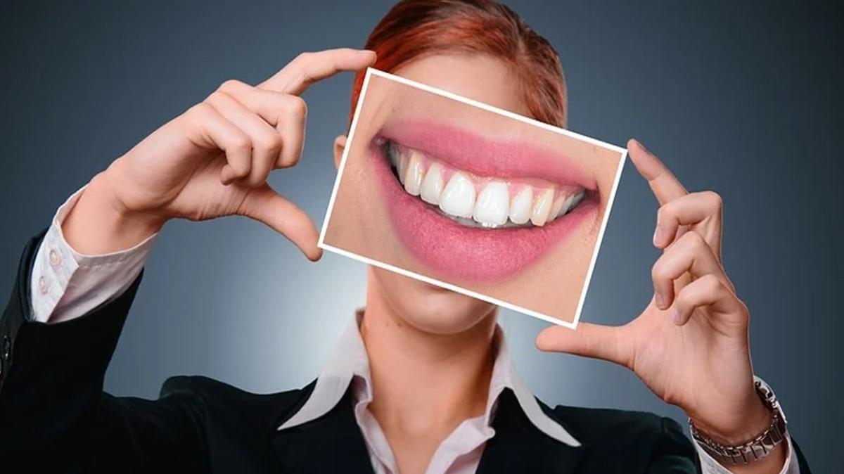 """Diş beyazlatma yöntemleri  Diş beyazlatma jeli nedir"""""""