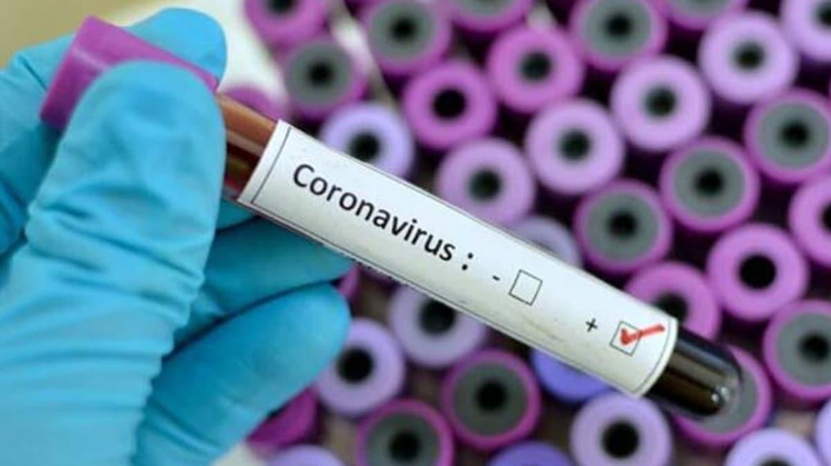 Koronavirüsten korunmada etkili yöntem 'Ağız Gargarası'