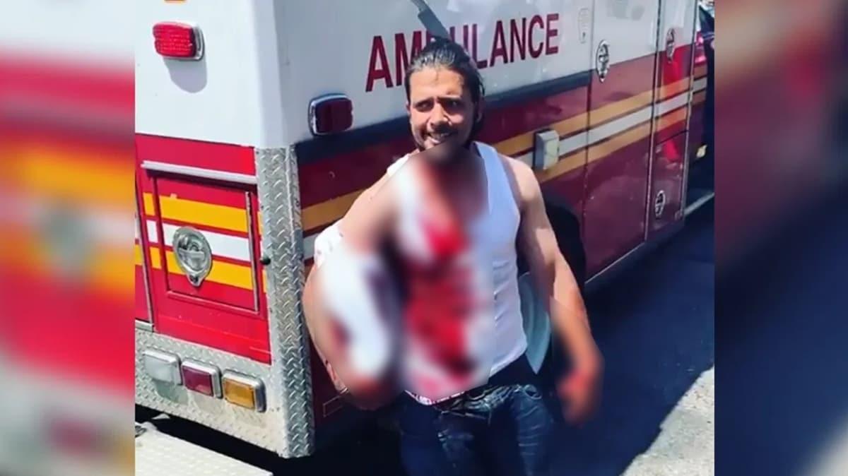 Kafasına bıçak saplanan adam ambulansa binmeyi reddetti: Kendimi iyi hissediyorum