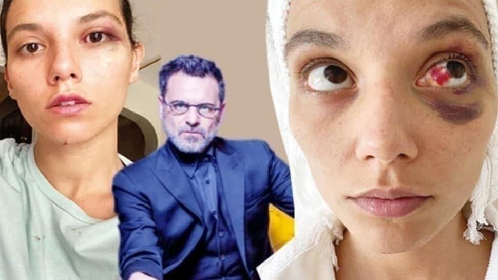 """Ozan Güven kadına şiddet olayına tepki yağdı! Uzmanlar nasıl yorumladı"""""""