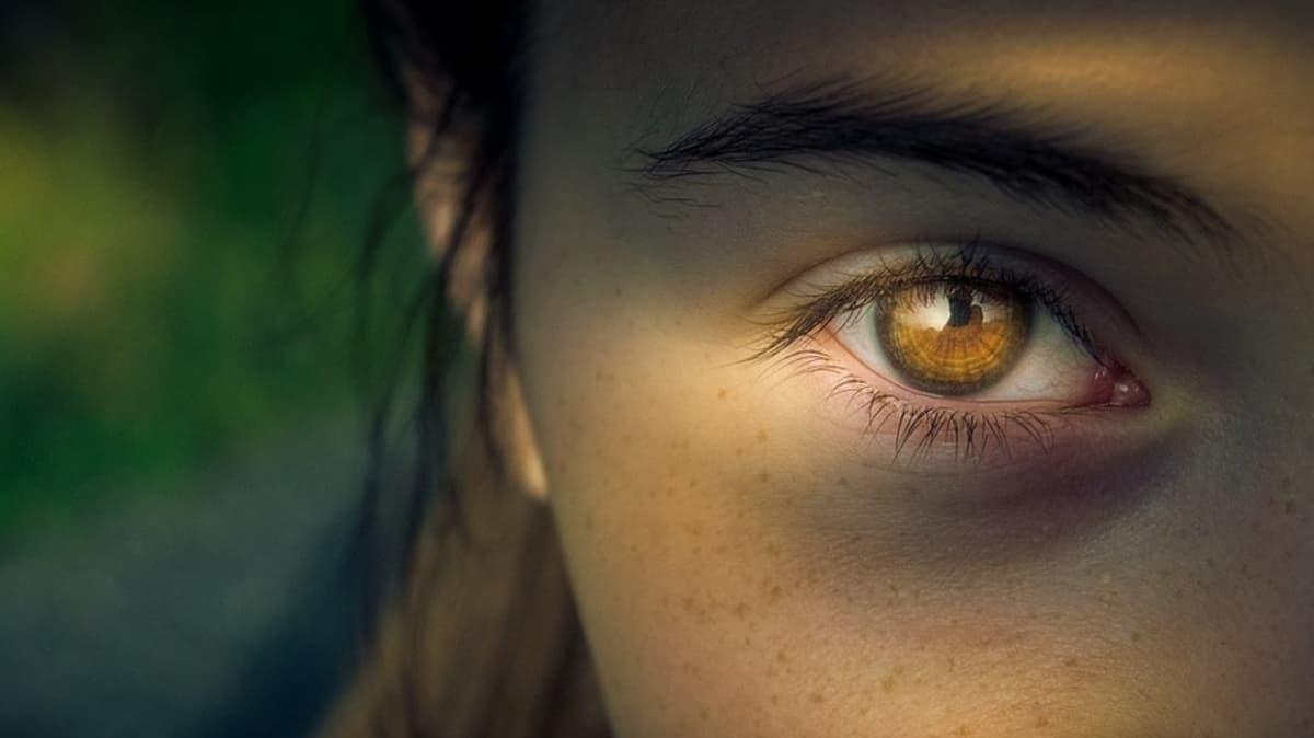 """Göz uçuğu körlüğe yol açabilir! Göz uçuğu nasıl geçer"""""""