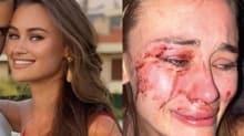 Çeşme'de şiddetin fotoğrafı