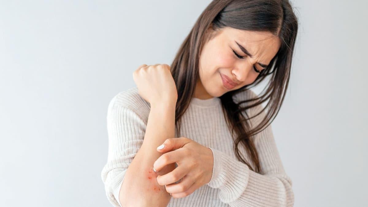 Besin alerjisi kaşıntı yapar