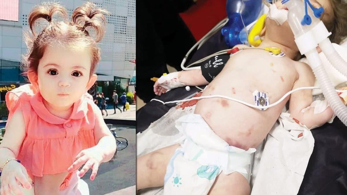 Hayat bebeği öldüren işkence