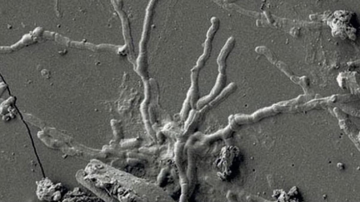 İtalya'da şaşırtan keşif: 2 bin yıllık kafatasında sağlam beyin hücresi bulundu