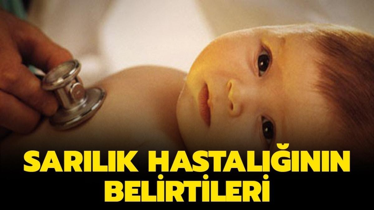 """Bebeklerde sarılık nasıl geçer"""" Sarılık nedir, neden olur"""""""