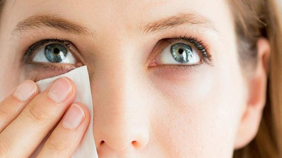 """Göz seğirmesi tedavisi nasıl"""" Göz seğirmesi nedir, neden olur"""""""