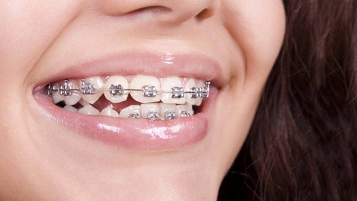 """Diş teli kullanımı neden yaygınlaşmaya başladı"""""""