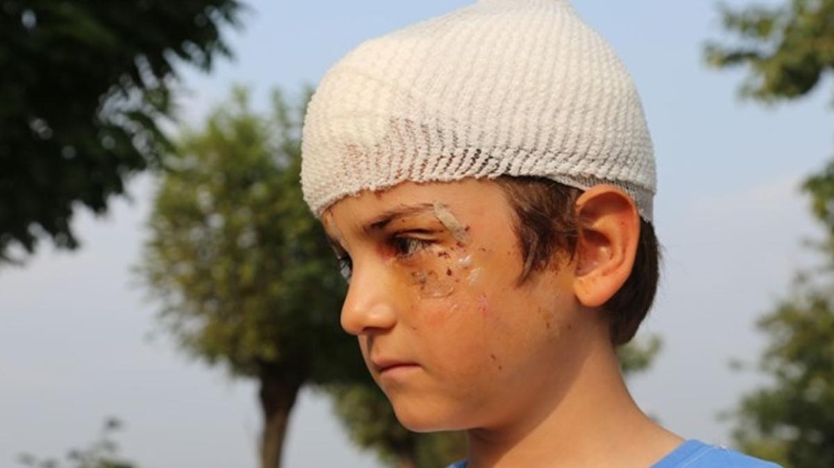 Kocaeli'de kangal dehşeti: 8 yaşındaki çocuğun kafasına 52 dikiş atıldı