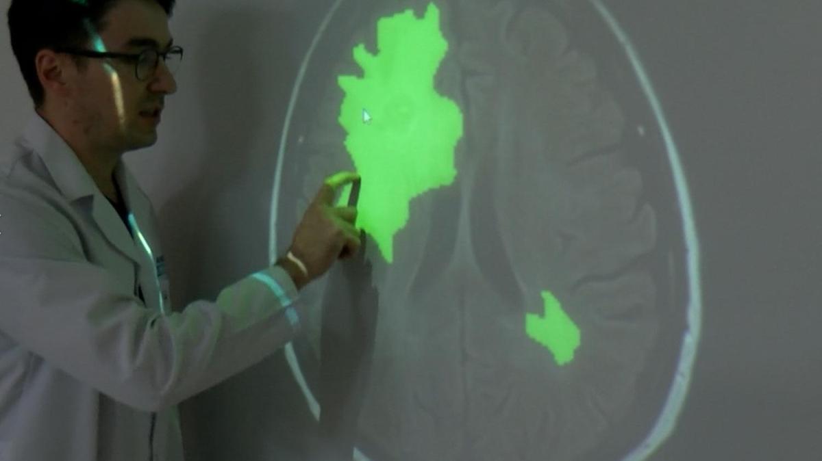 Cumhurbaşkanlığından önemli proje! Türk Beyin Projesi ile tümör 5-10 saniyede tespit edilebilecek