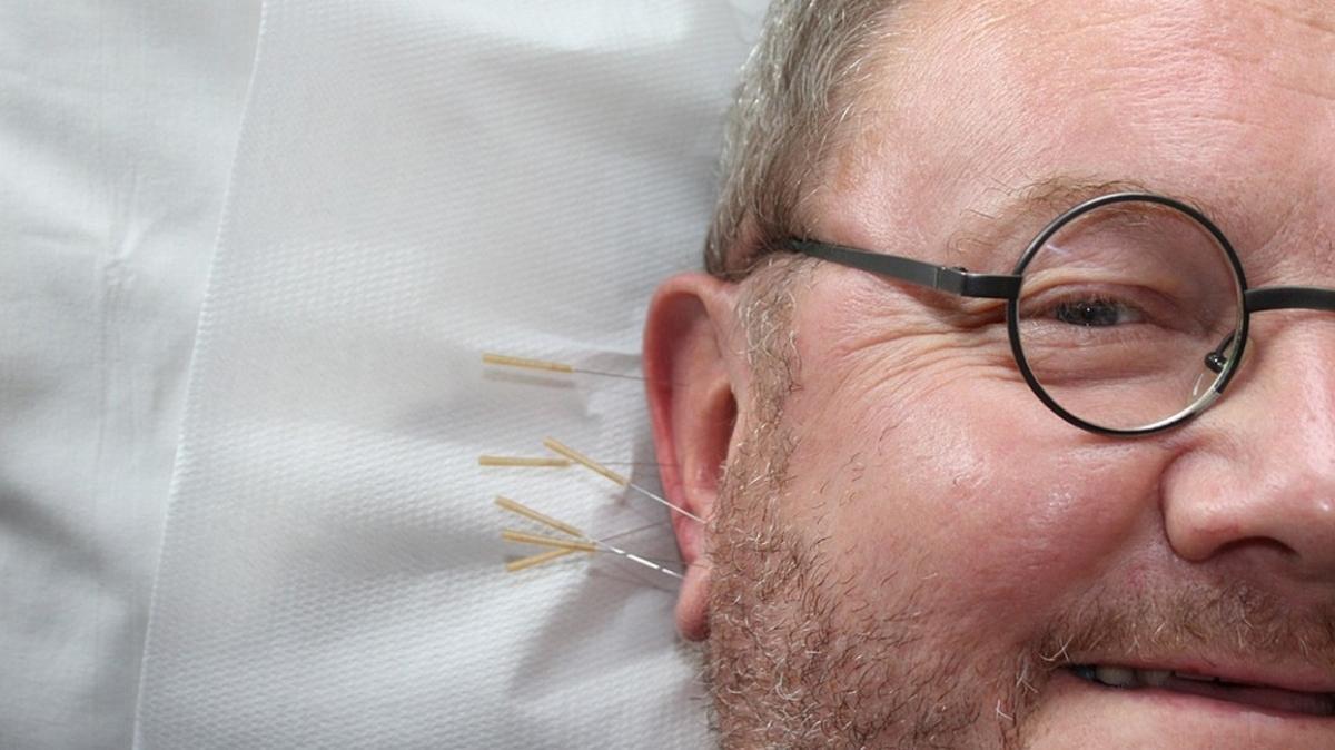 Sigara bağımlılığından 15 günde kurtaran tedavi: Akupunktur
