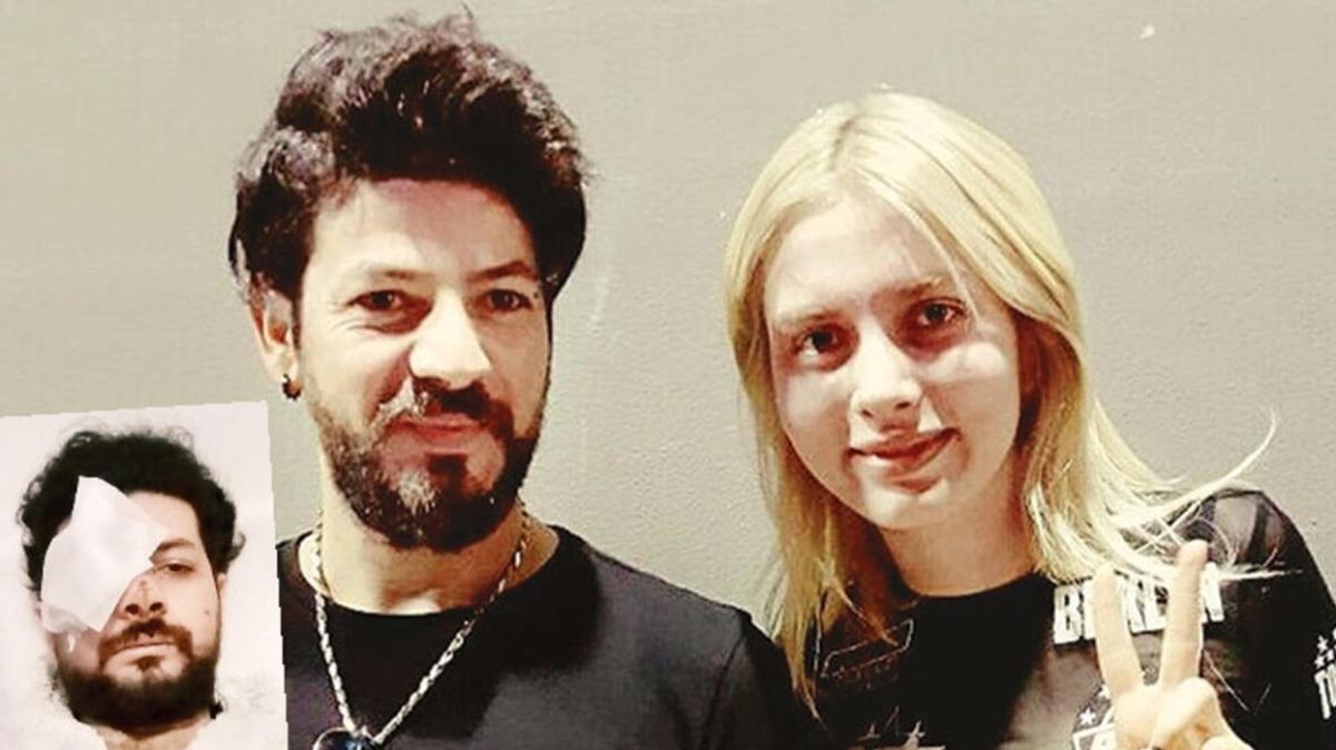 Şarkıcı Şahan Dinç maganda kurşunu yüzünden gözünü kaybetti!