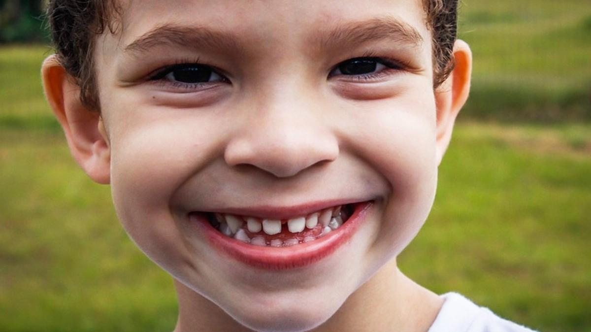 Mine bozukluğu diş kaybına yol açabilir