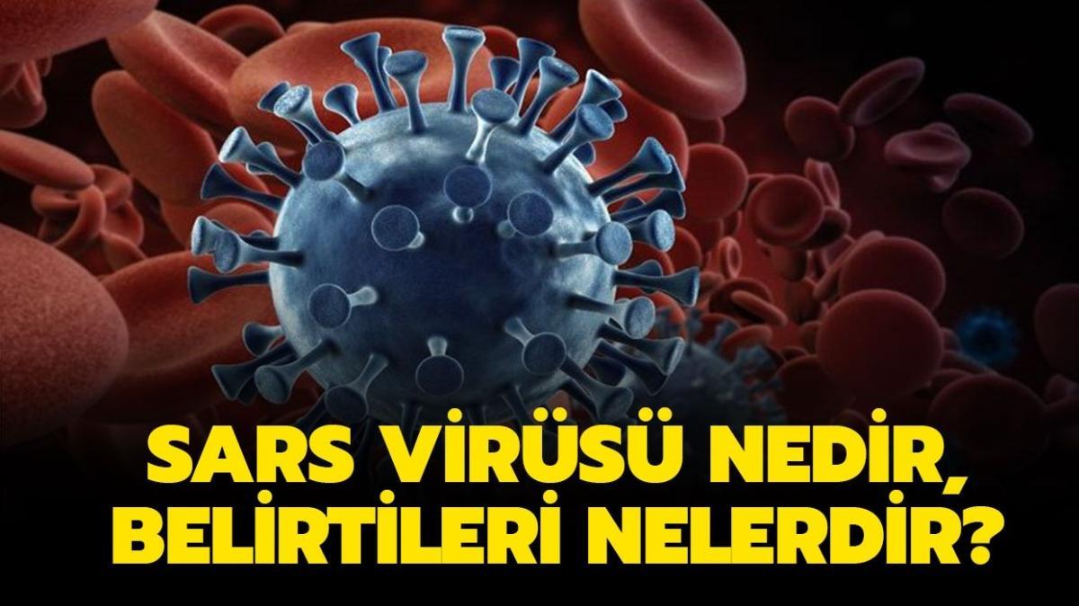 """Sars aşısı var mı, tedavisi nedir"""" Sars virüsü nedir, belirtileri nelerdir"""""""