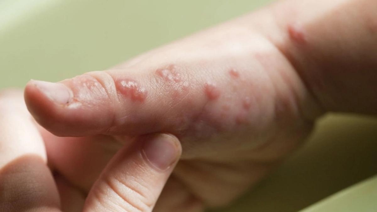 Bağışıklığın düşmesi zonayı tetikliyor! İşte zona hastalığı belirtileri