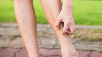 Bacaklardaki kaşıntının 5 sebebi