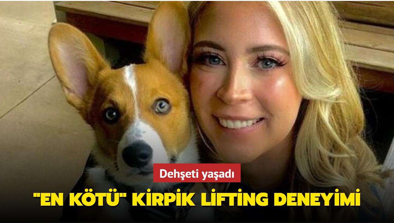 Kirpik lifting için gittiği salonda köpeğin saldırması sonucu göz kapağı koptu