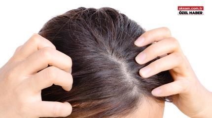 Saçta kepek hastalık anlamına gelebilir! İşte kepeği azaltan doğal yöntemler