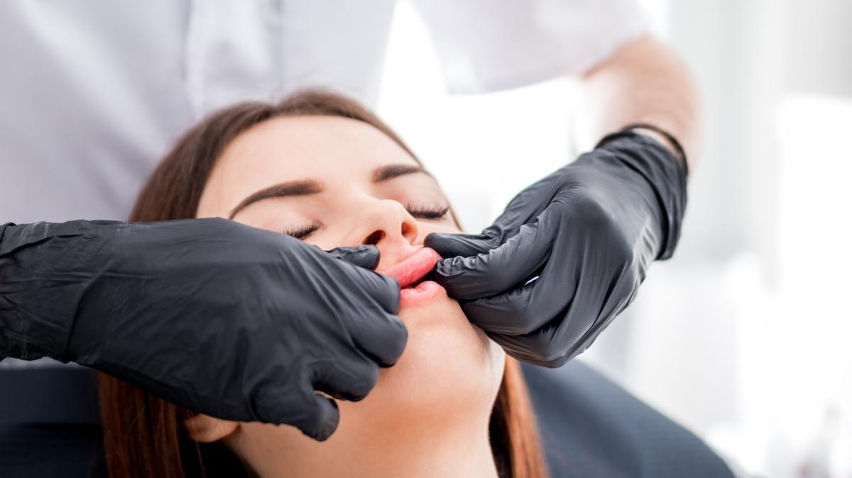 İğnesiz dolgun dudaklara sahip olmanın 5 yolu