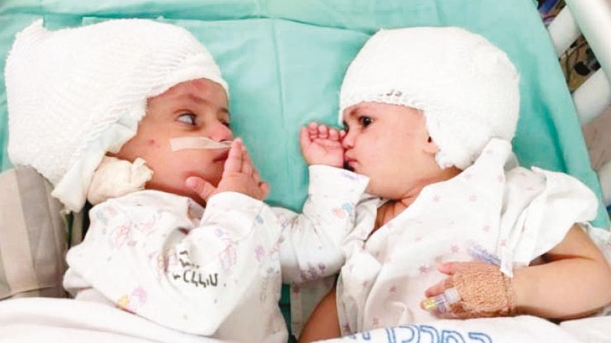 İkizlerden ilk bakış