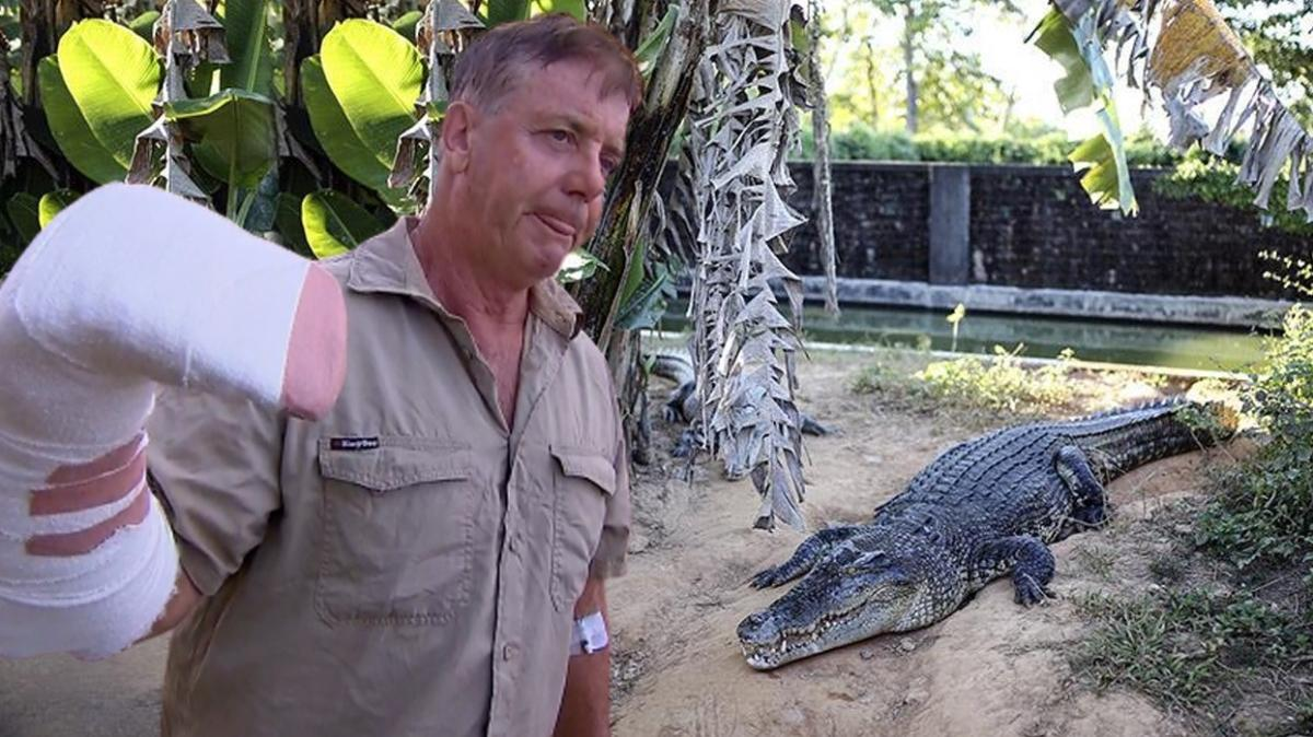 Avustralya'da bir kişi timsah saldırısına uğradı