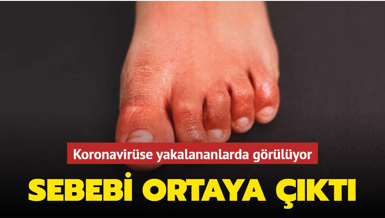 Koronavirüse yakalananlarda görülen el ve ayak lezyonlarının sebebi belli oldu