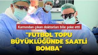 Karnından çıkan doktorları bile şoke etti: Futbol topu büyüklüğünde saatli bomba