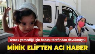 Yemek yemediği için babası tarafından dövülmüştü: Minik Elif'ten acı haber