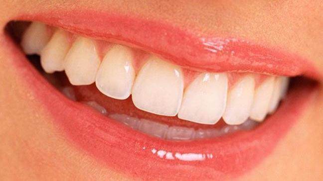 Ağız ve diş sağlığında doğru bildiğiniz yanlışlar