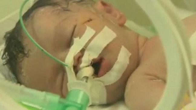 Filistinli bebek Şeyma'dan kötü haber geldi