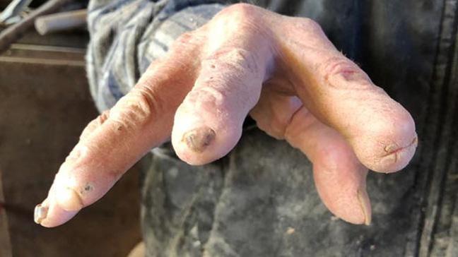 72 yıllık çalışan adamın ellerinde kesilmeyen parmağı kalmadı