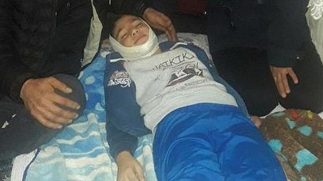 Çocuğa çarptı, otomobilin hasarının masrafını istedi