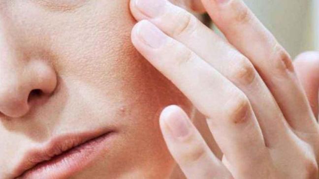 Egzama tedavisinde 13 doğal iyileşme yolu!