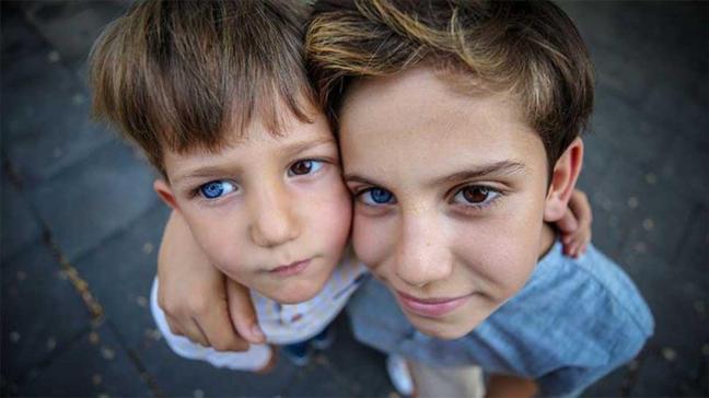 Farklı renkte gözlere sahip kardeşlerin fotoğrafı çok konuşuldu!