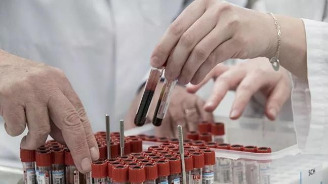Singapurlu profesör koronavirüsün 3 özelliğine dikkat çekti! 'O hastaların sayısı sanılandan fazla... Bu, mücadeleyi zorlaştırıyor'