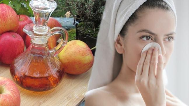 """Ciltte ve saçta mucize etki: Elma sirkesi! Elma sirkesinin saça ve cilde faydaları nelerdir"""""""