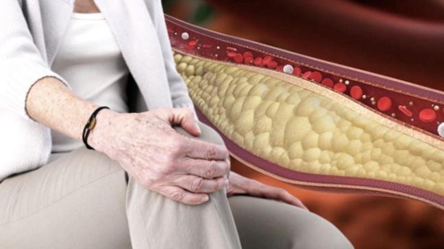 """Kolesterol nedir, belirtileri nelerdir"""" Kolesterol nasıl düşürülür"""""""