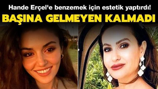 Hande Erçel'e benzemek için estetik yaptırdı... Başına gelmeyen kalmadı