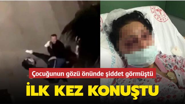 Samsun'da eski eşi tarafından sokak ortasında şiddet gören kadın konuştu: Hep tutuklu kalsın