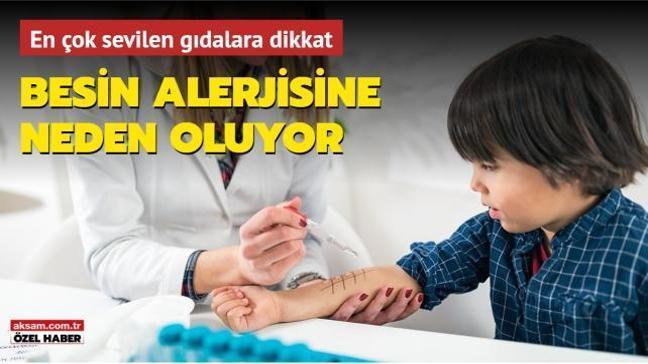Çocuklarda alerjiye neden olan 10 besin