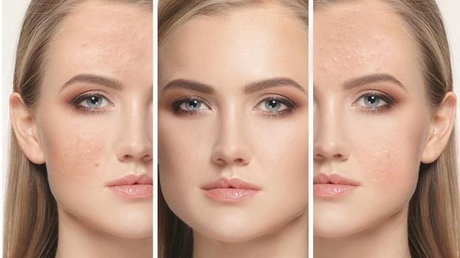 Yüzü değiştiren uygulama! İple yüz germe uygulaması en çok yanak, kaş ve alın için kullanılıyor